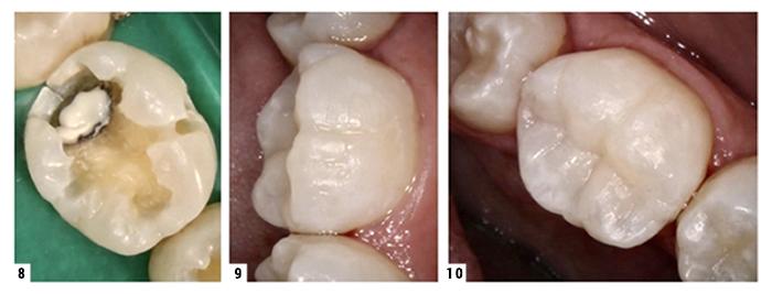 bisco-thera-klinicne-prednosti-slike-prikaz-primera-3-700px